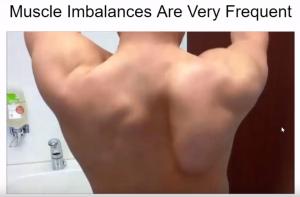 Shoulder Muscle Imbalance