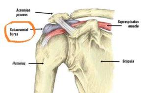 Shoulder bursitis image