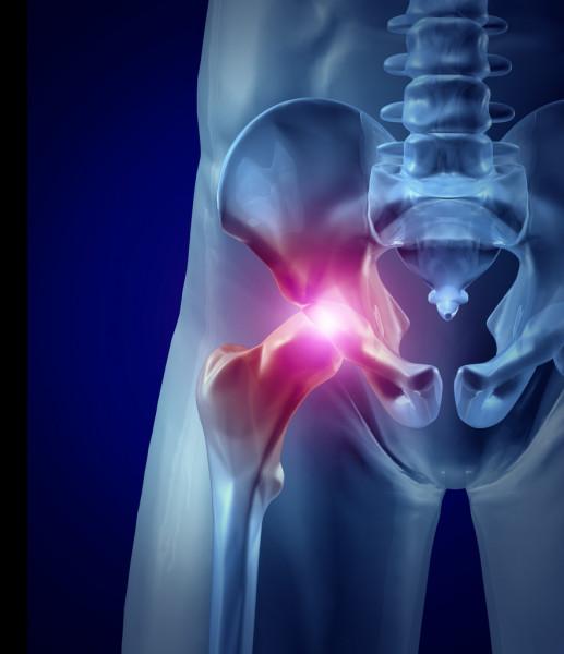 hip pain tendonitis bursitis
